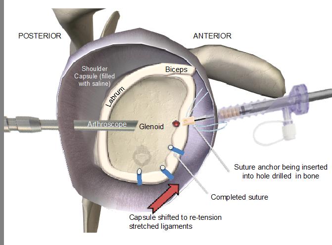 Arthroscopic Shoulder Stabilisation Bankart Or Labral Repair