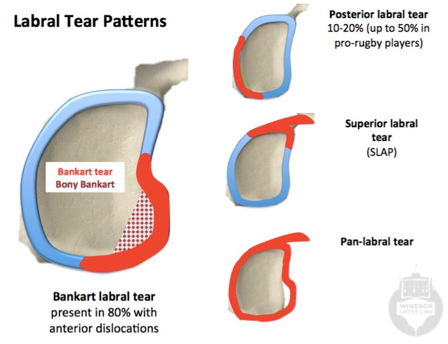 Shoulder Dislocation, Instabilty and Labral tears